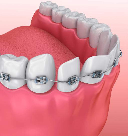 Сколько стоит лечение одного зуба ребенку thumbnail