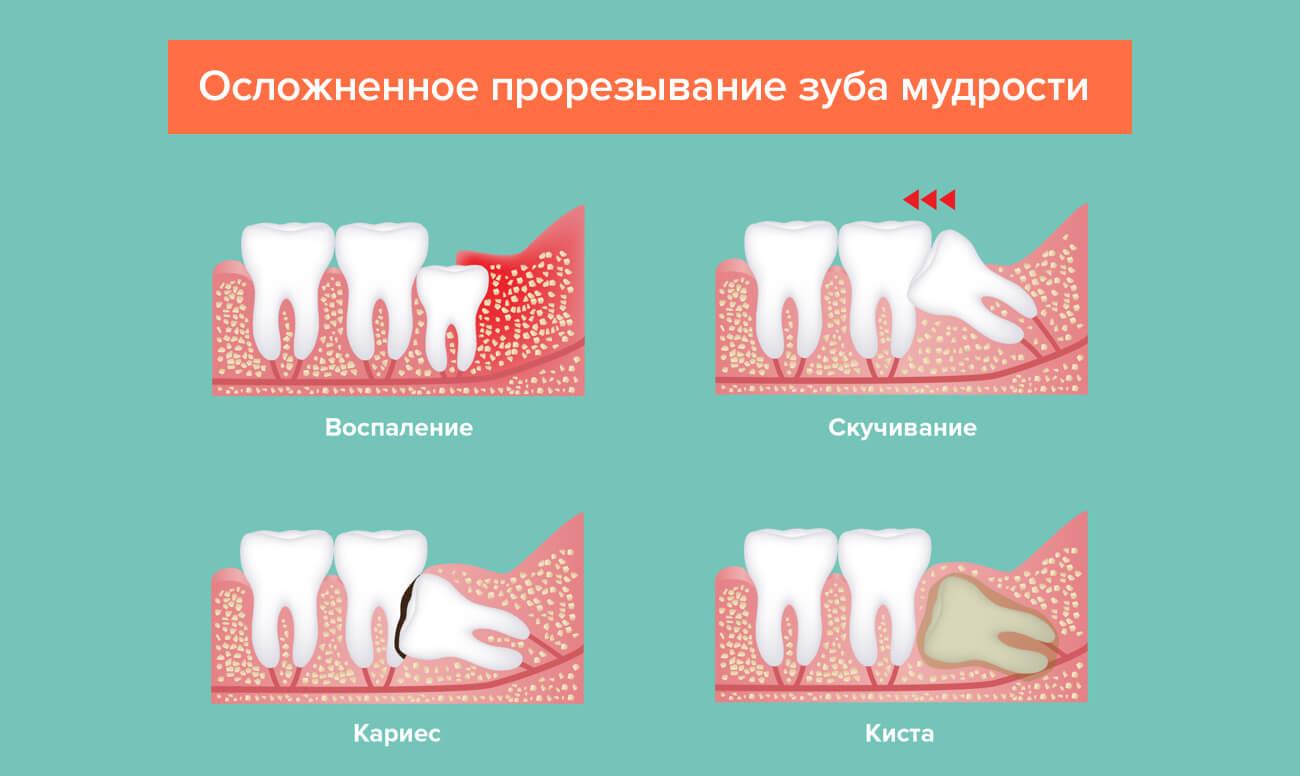 Различные заболевания, требующие удаления или лечения зуба мудрости.