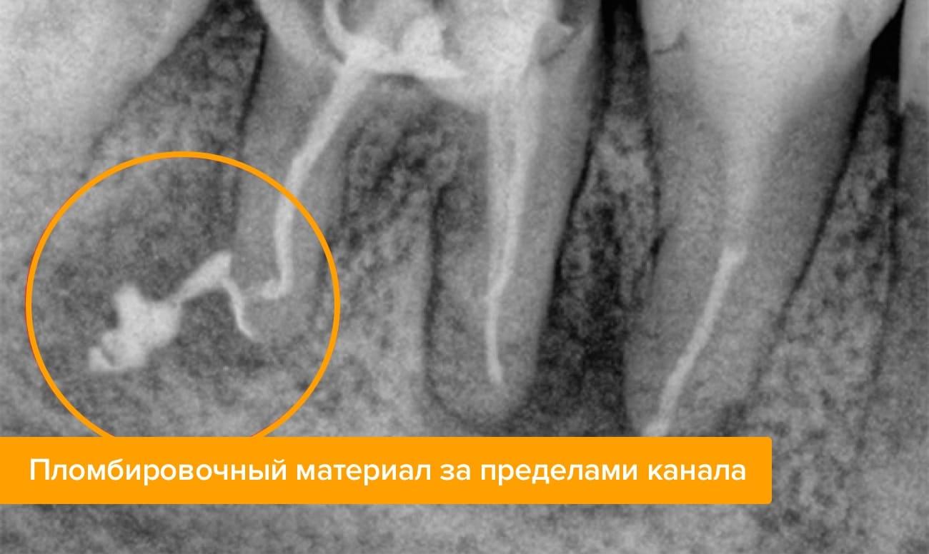 Пломбировочный материал за пределами канала на рентгене