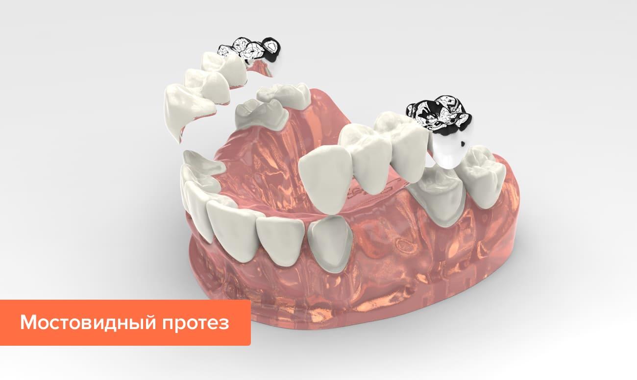 Частичное отсутствие зубов лечение thumbnail