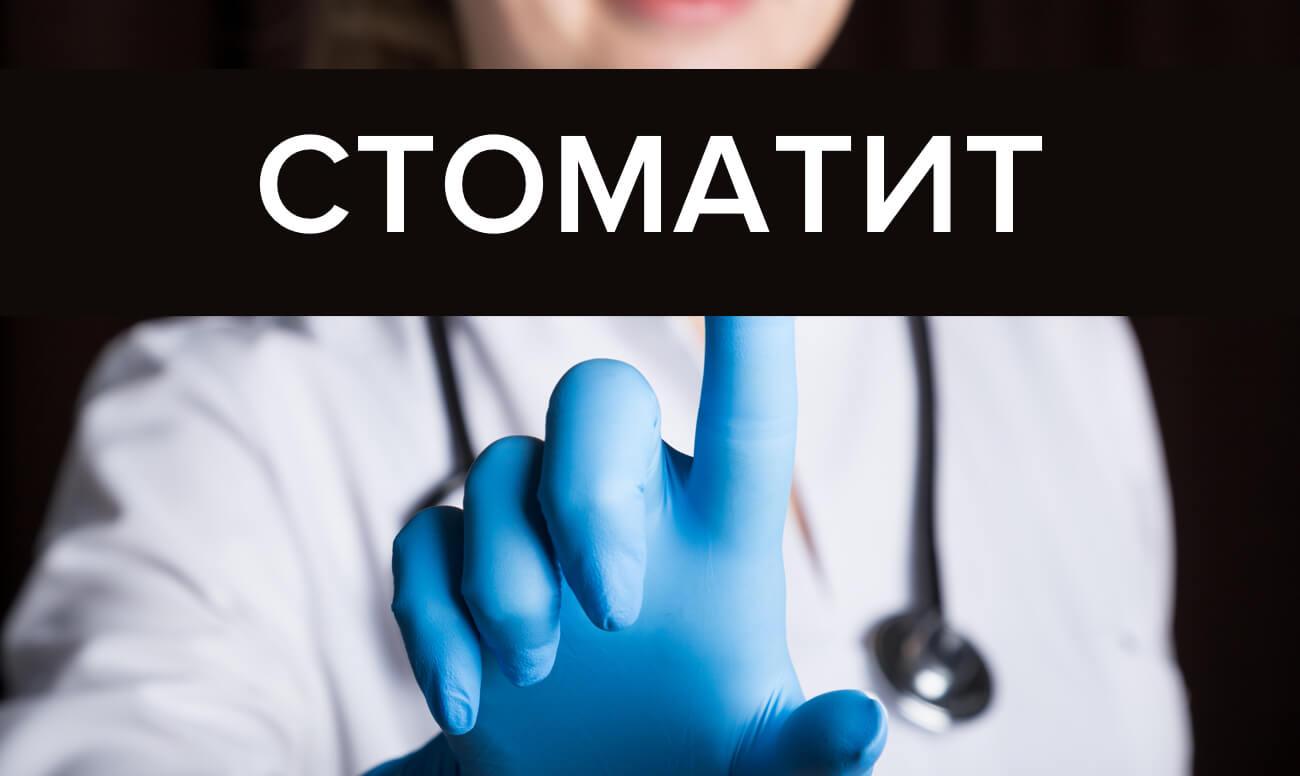 Лечение стоматита у взрослых: виды, препараты