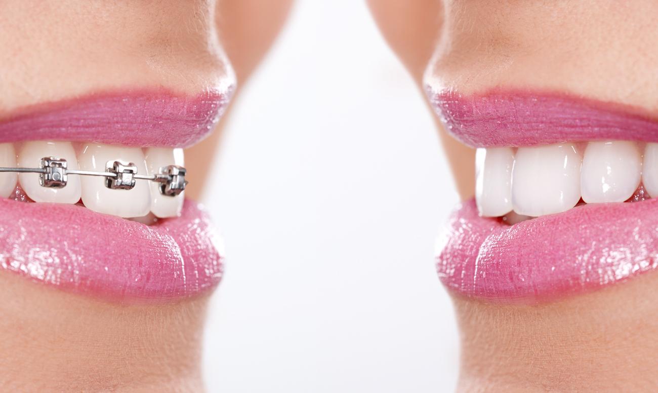 сладкий запах изо рта у взрослого причины