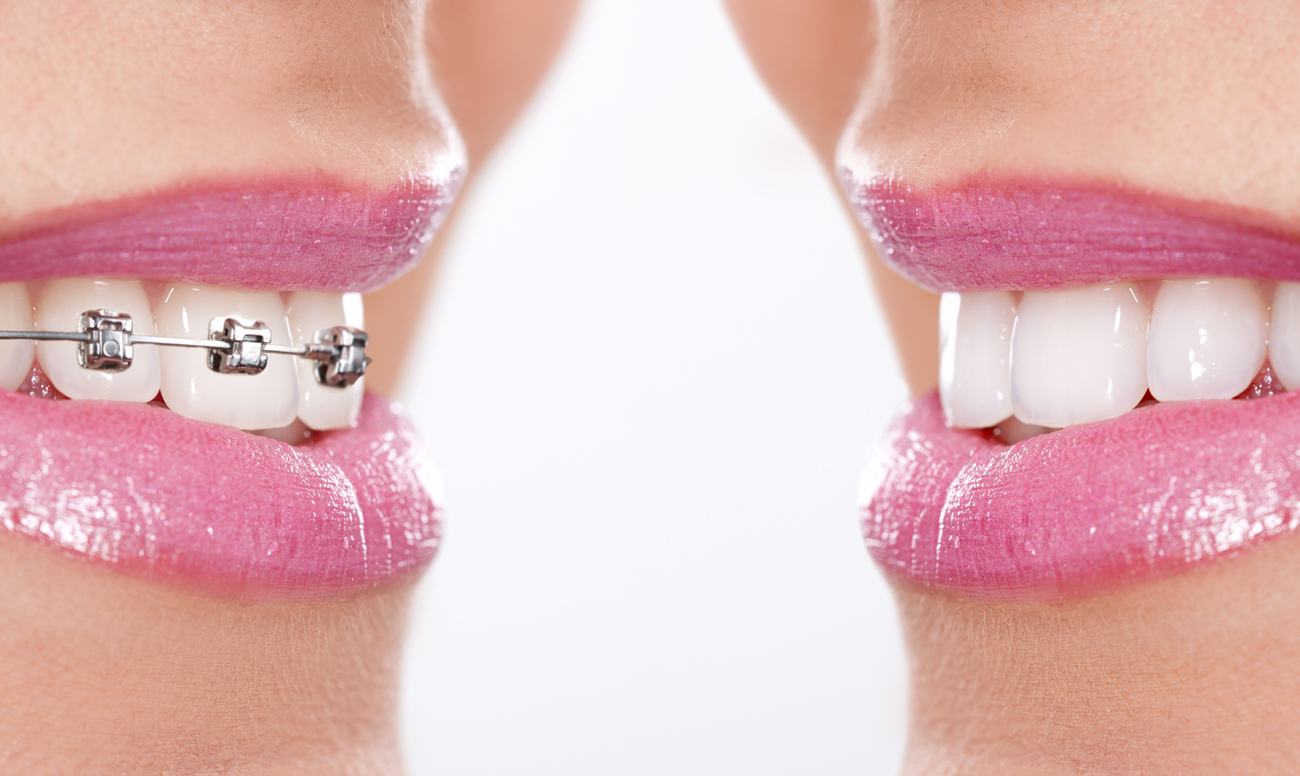 запах изо рта после аденотомии
