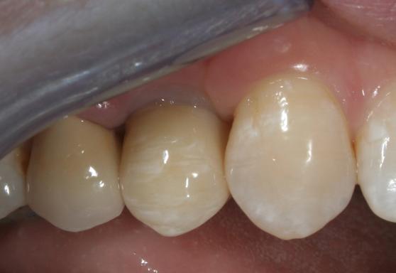 отбеливание зубов кунцево