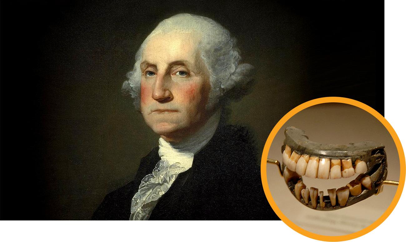 Зубы для Джорджа Вашингтона имплантация
