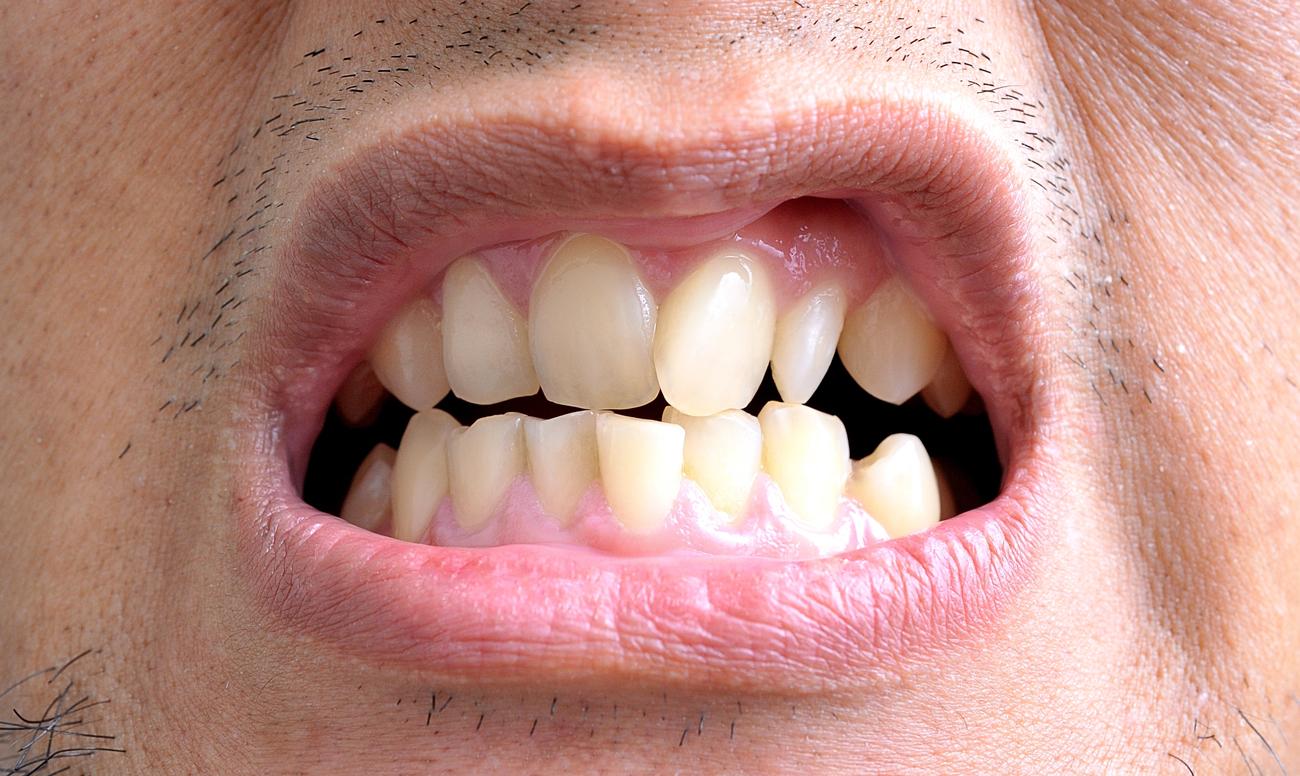 запах изо рта налет на языке лечение