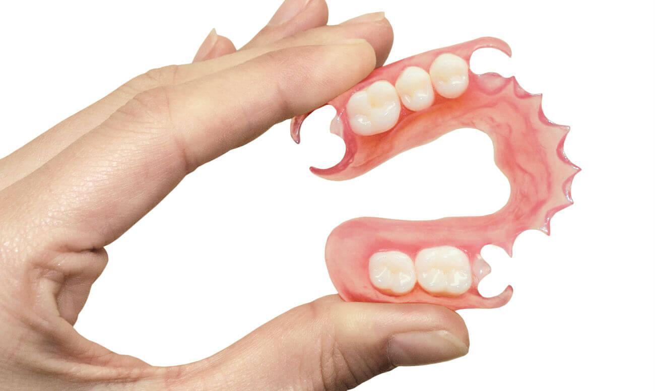 съемные зубные протезы виниры