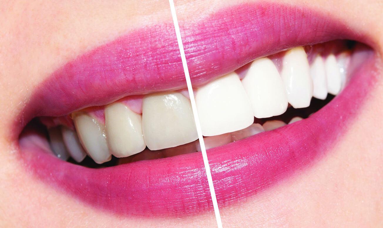 Отбелила зубы дома до и после