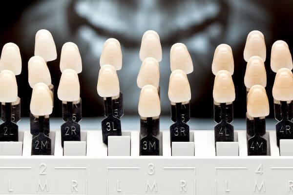 Отбеливатель зубов в интернет-магазине