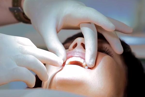 Как ставят виниры на зубы
