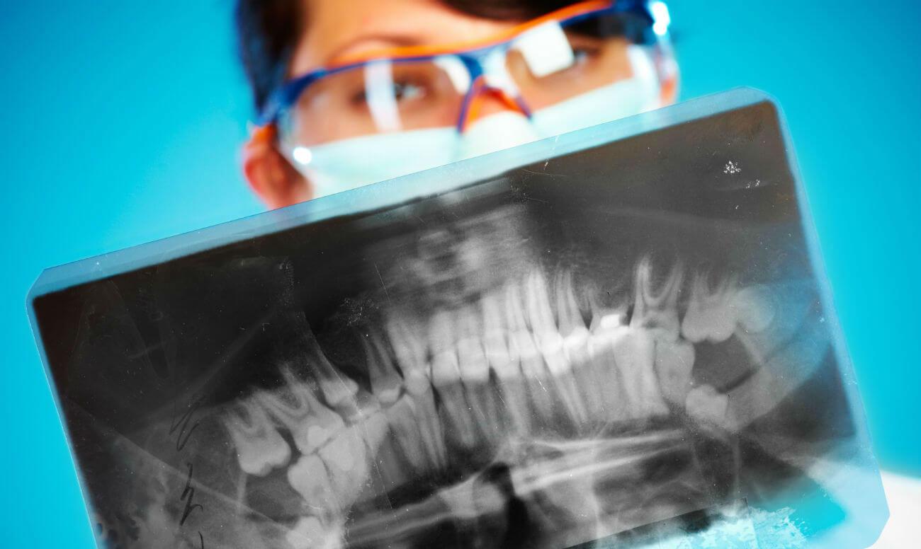 Где сделать панорамный снимок зубов в спб