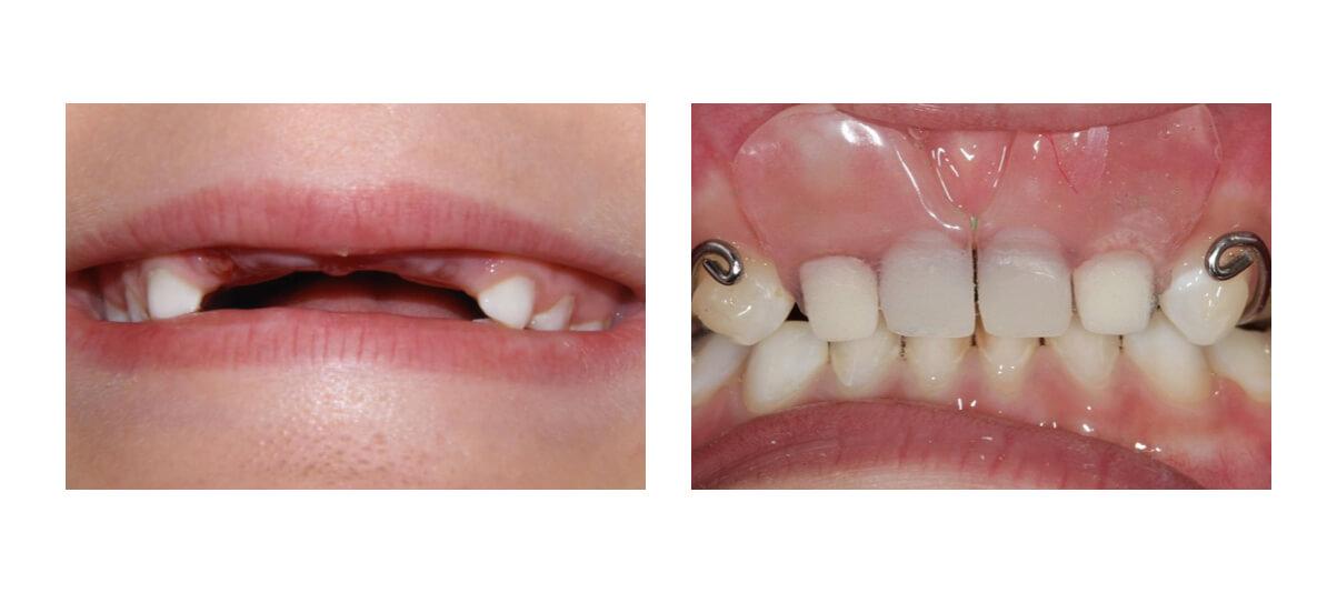 Фото протеза после удаления молочных зубов