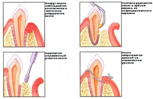 Этапы гингивэктомии