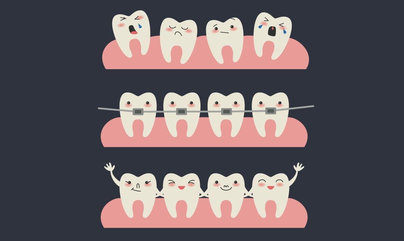 Этапы выравнивания зубов брекетами у детей в картинках
