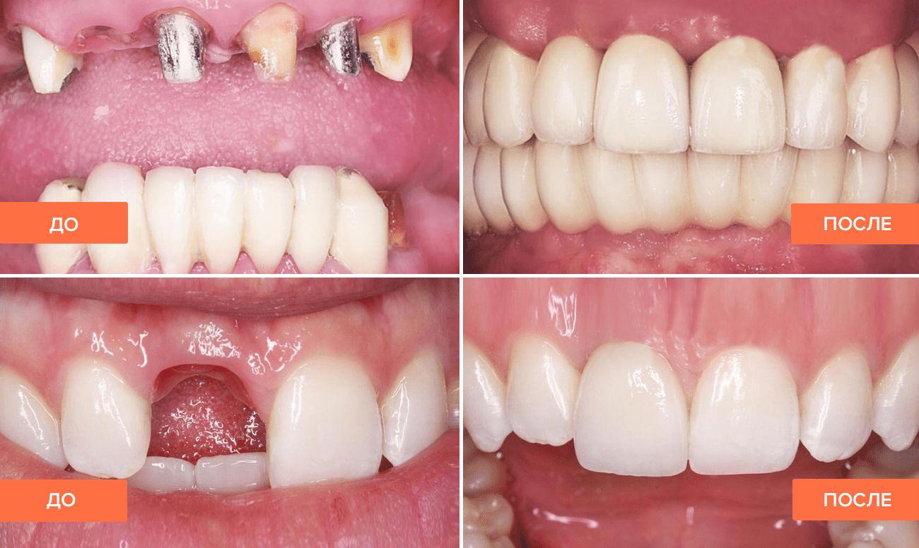 Фото пациента до и после имплантации