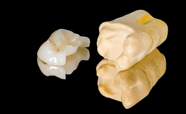 Зубные виниры плюсы и минусы отзывы