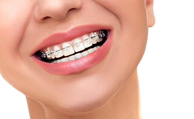 Фото керамических брекетов на зубах