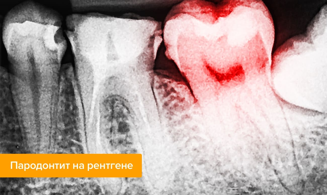 Пародонтит на рентгене