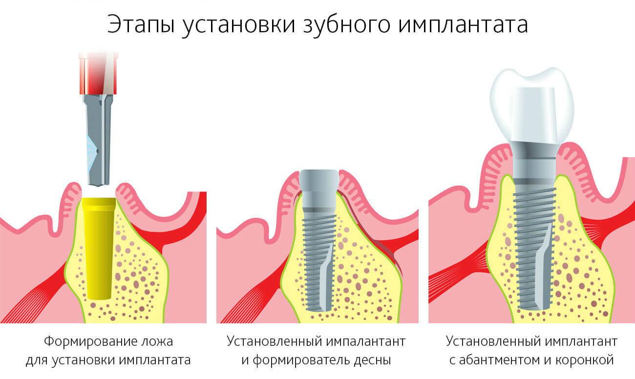 имплантация зуба в картинках