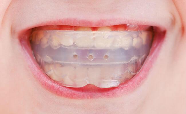 Фото трейнеров для зубов