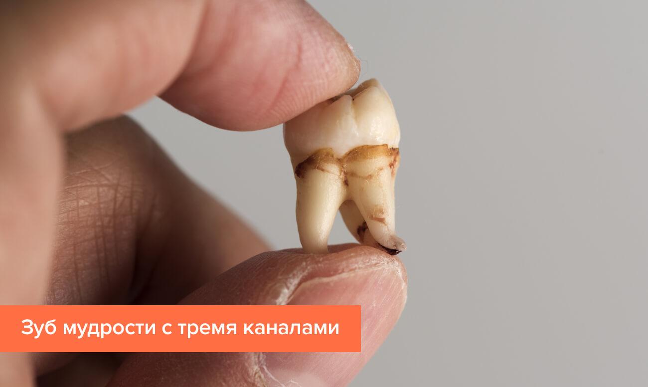 зуб мудрости фото корни
