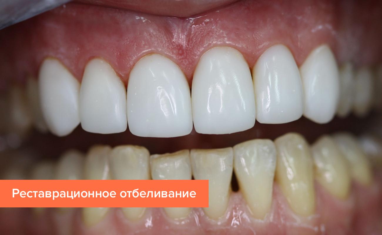 стоимость виниров на зубы в спб