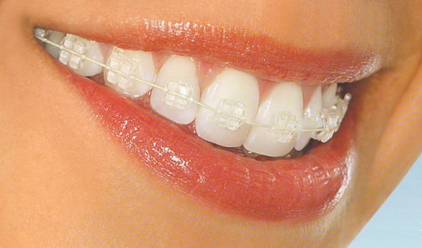 Как работают брекеты на нижней челюсти - 30e51