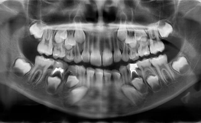 Как правильно сделать рентген снимок зуба