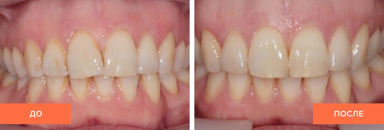 Фото пациента до и после лечения лингвальными брекетами