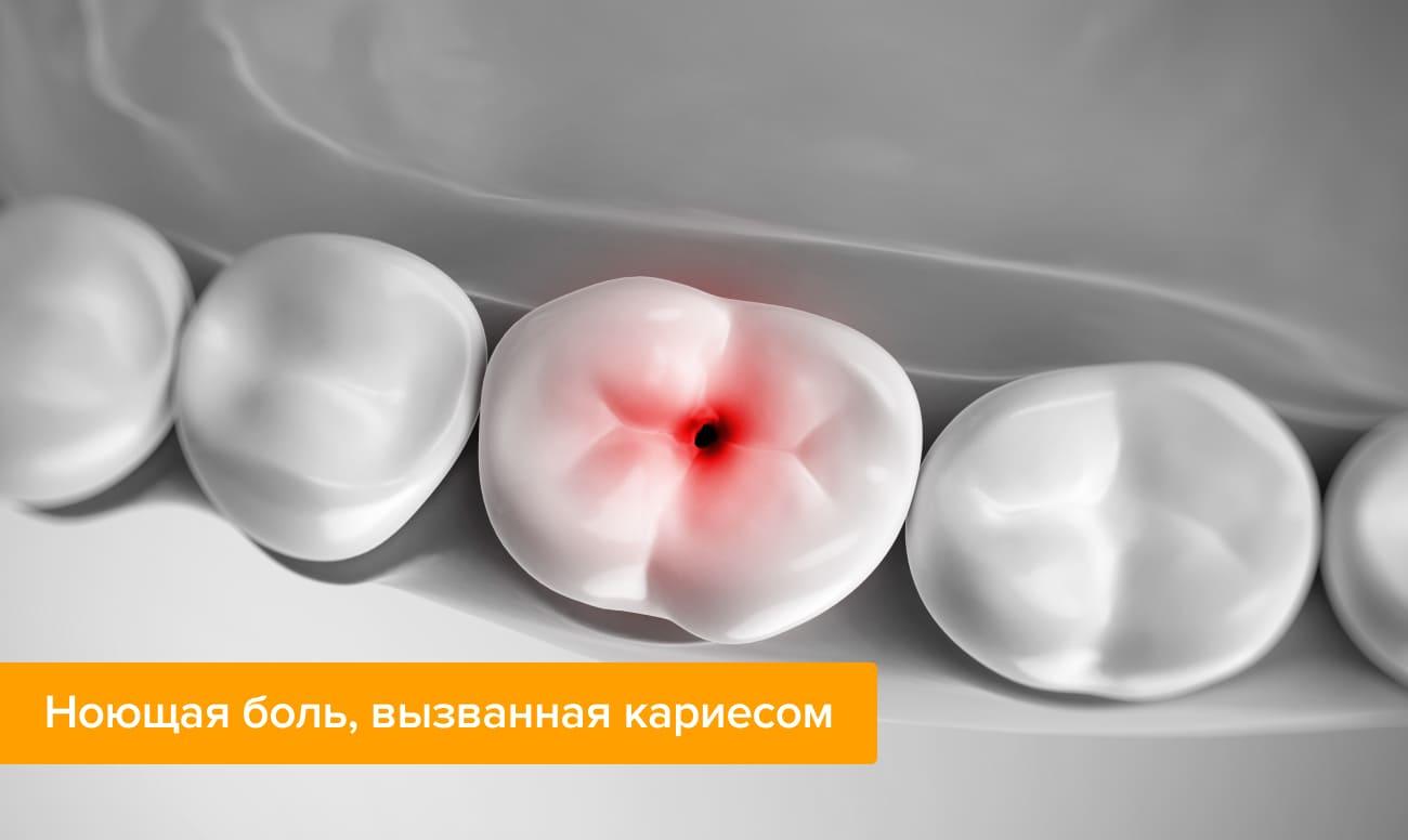 Фото зубов с кариесом, который вызывает ноющую зубную боль