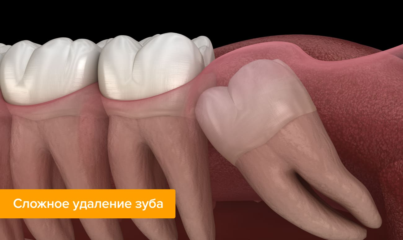Фото ретинированного зуба