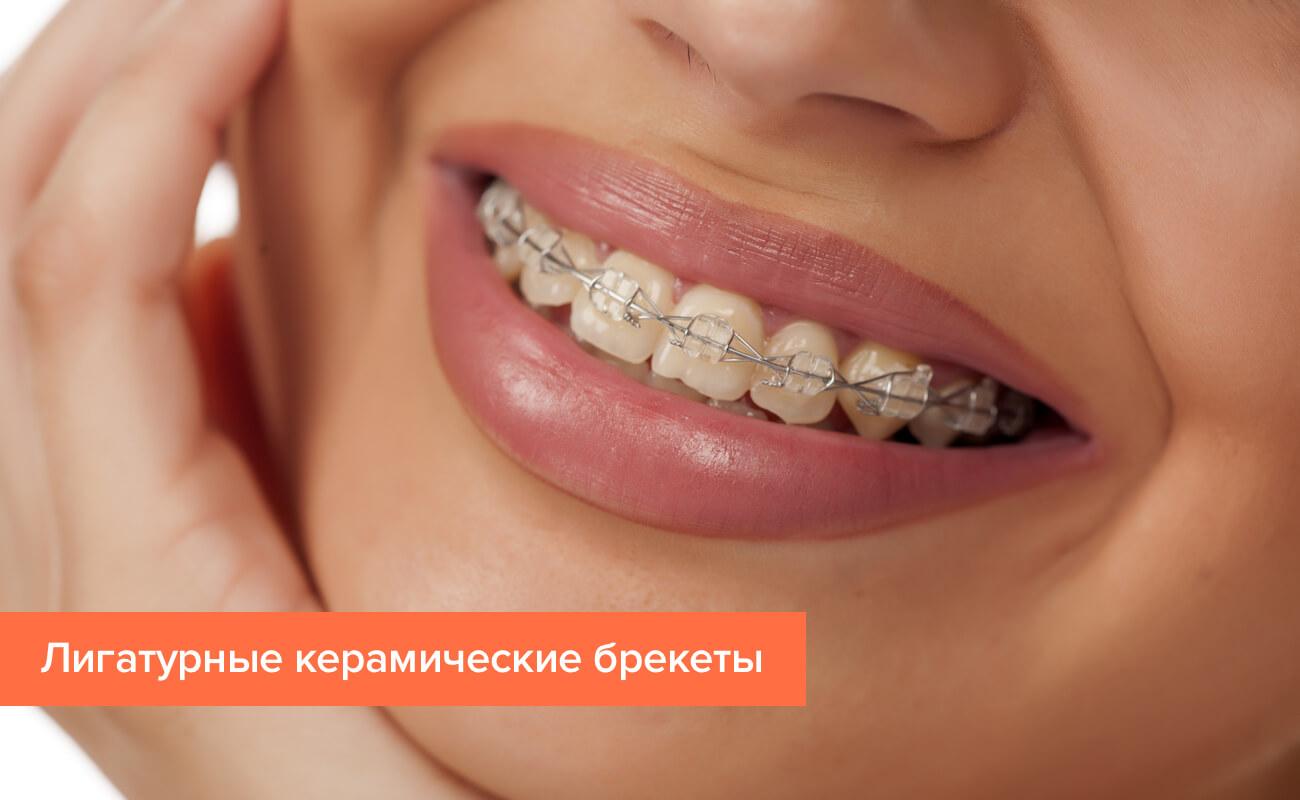 Фото лигатурных керамических брекетов на зубах