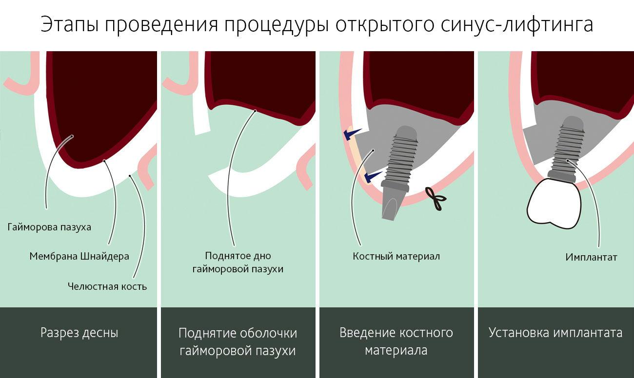 Этапы проведения процедуры открытого синус-лифтинга