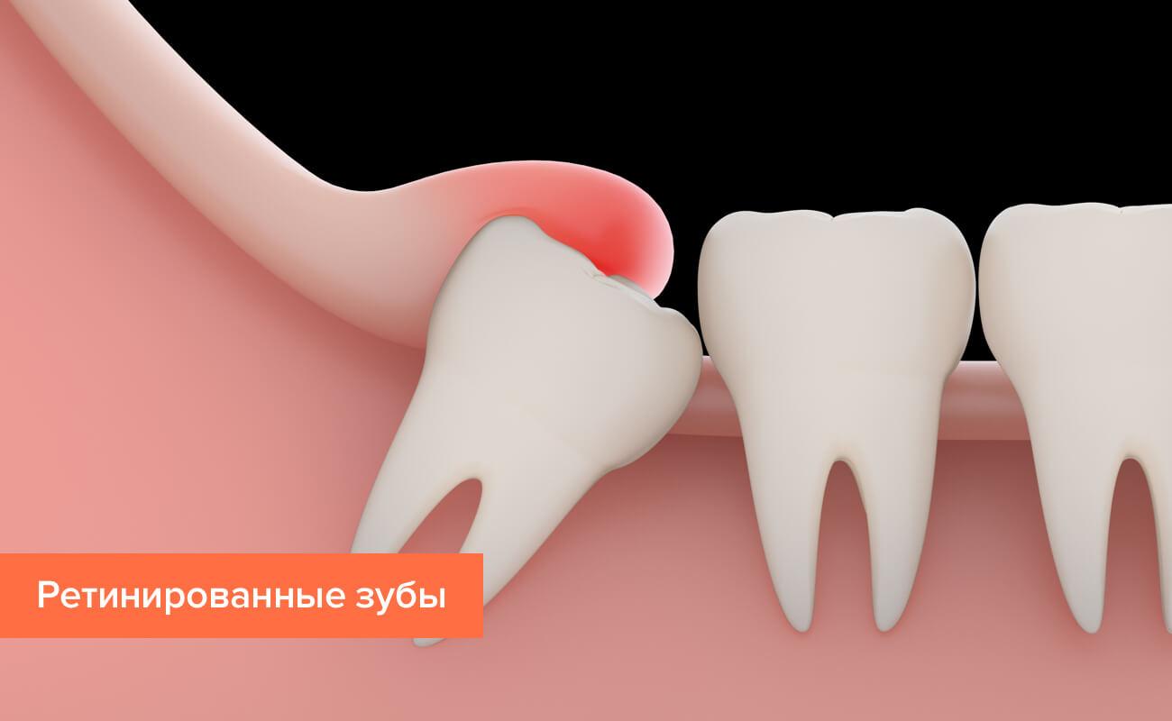 Ретинированные зубы в картинках