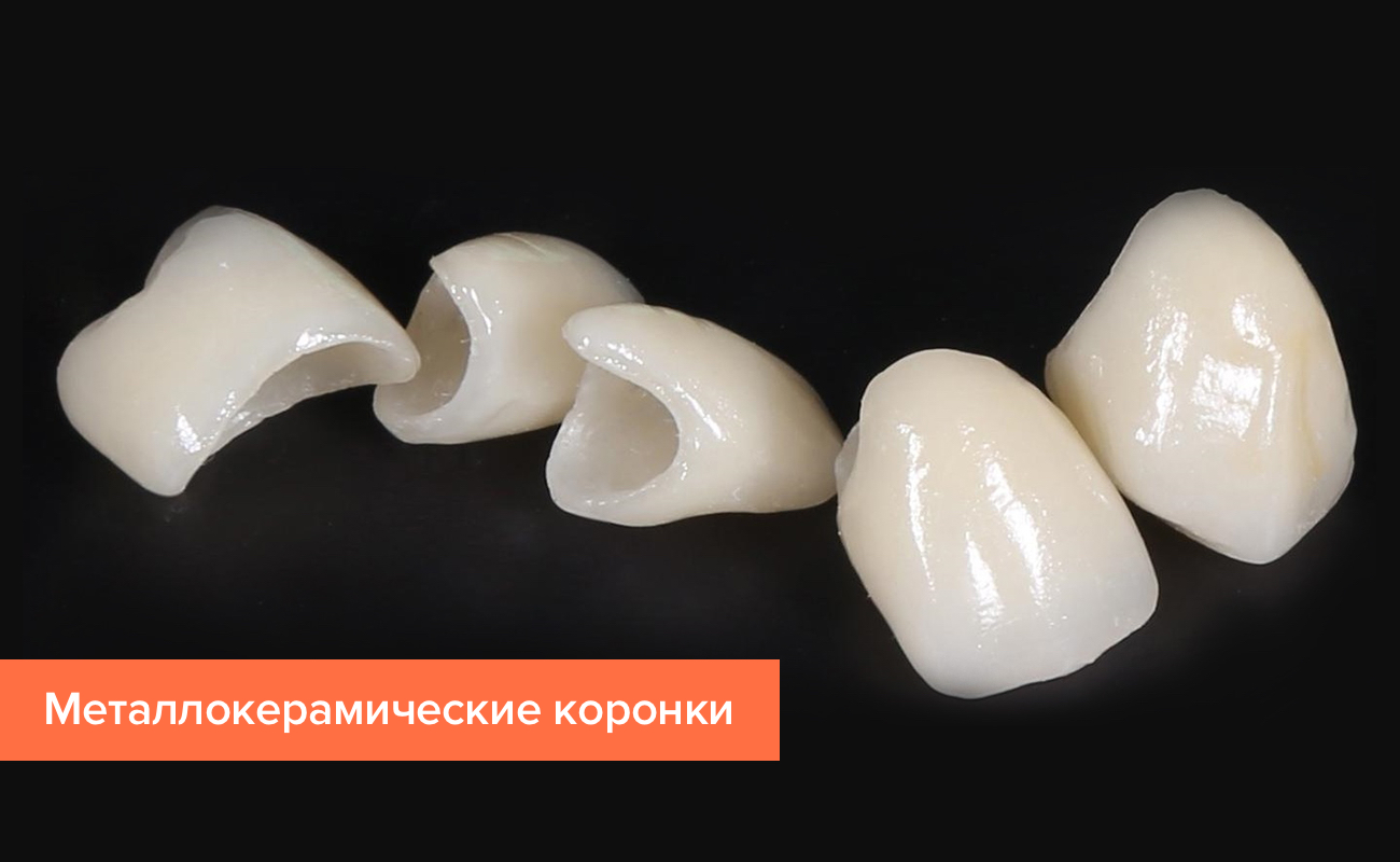 Фото зубных коронок из пластмассы