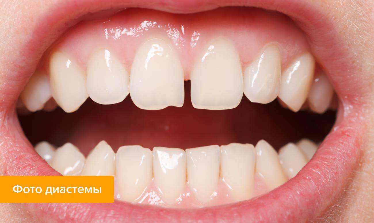 Фото диастемы зубов