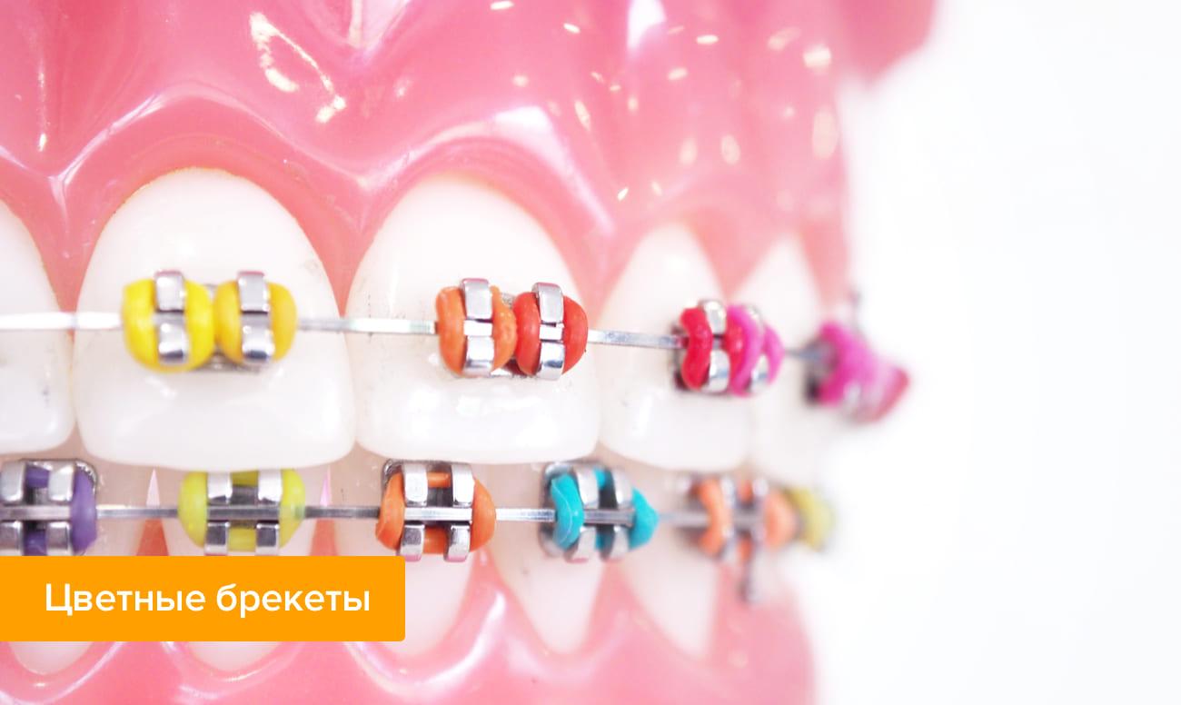 Фото цветных брекетов на зубах
