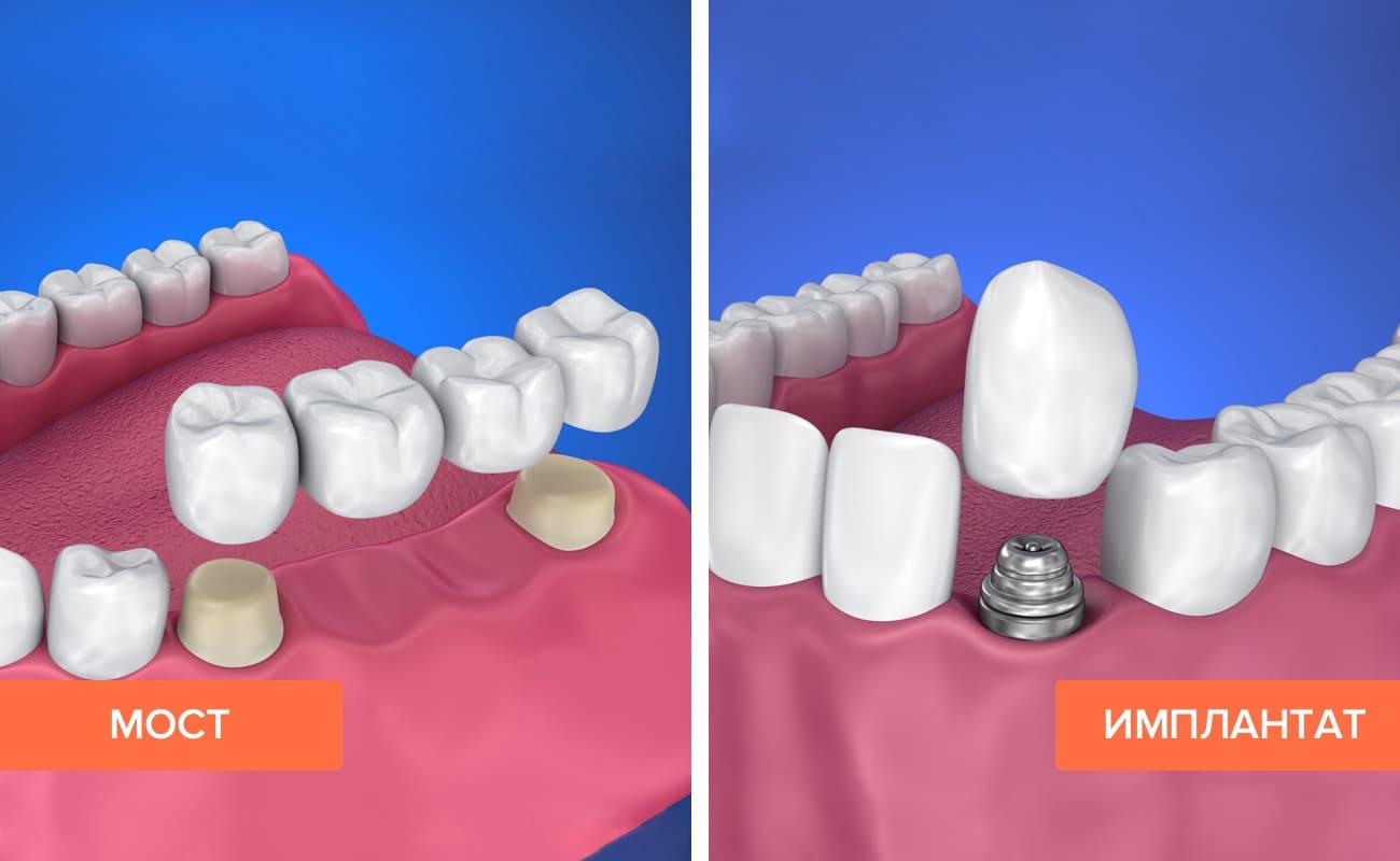 Мост и имплантат на жевательных зубах в картинках