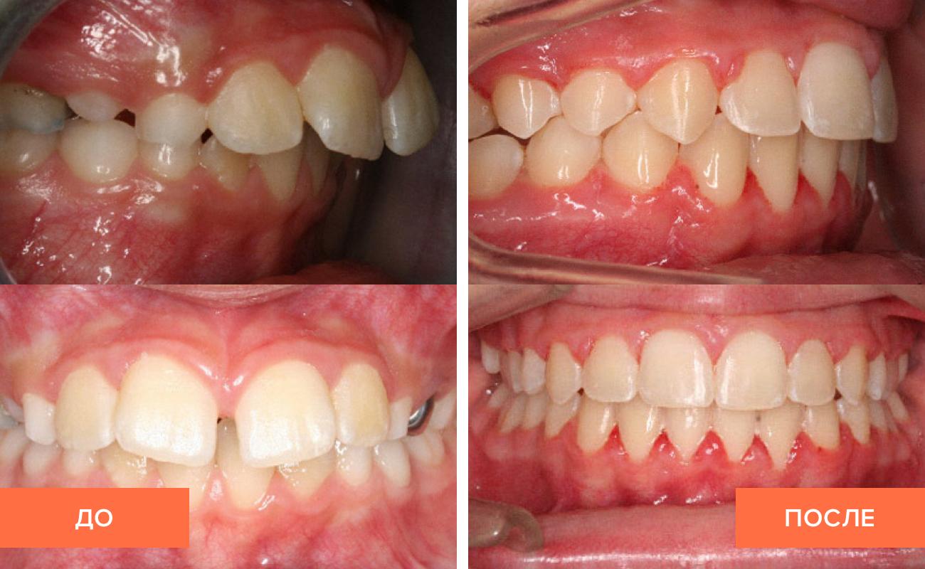 Выравнивание зубов у ребенка 6 лет 130
