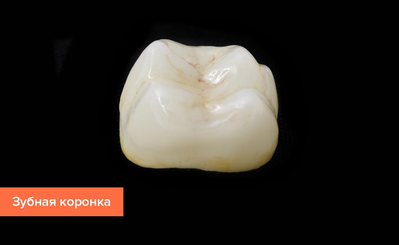 Фото зубной коронки