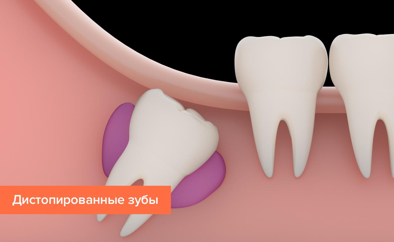 Дистопированные зубы в картинках