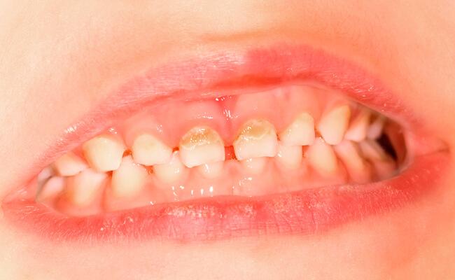 Фото начального кариеса молочных зубов