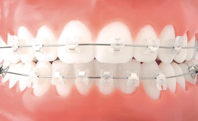 hi smile отбеливание зубов