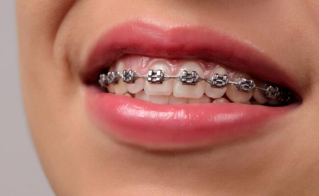 Фото металлических брекетов на зубах