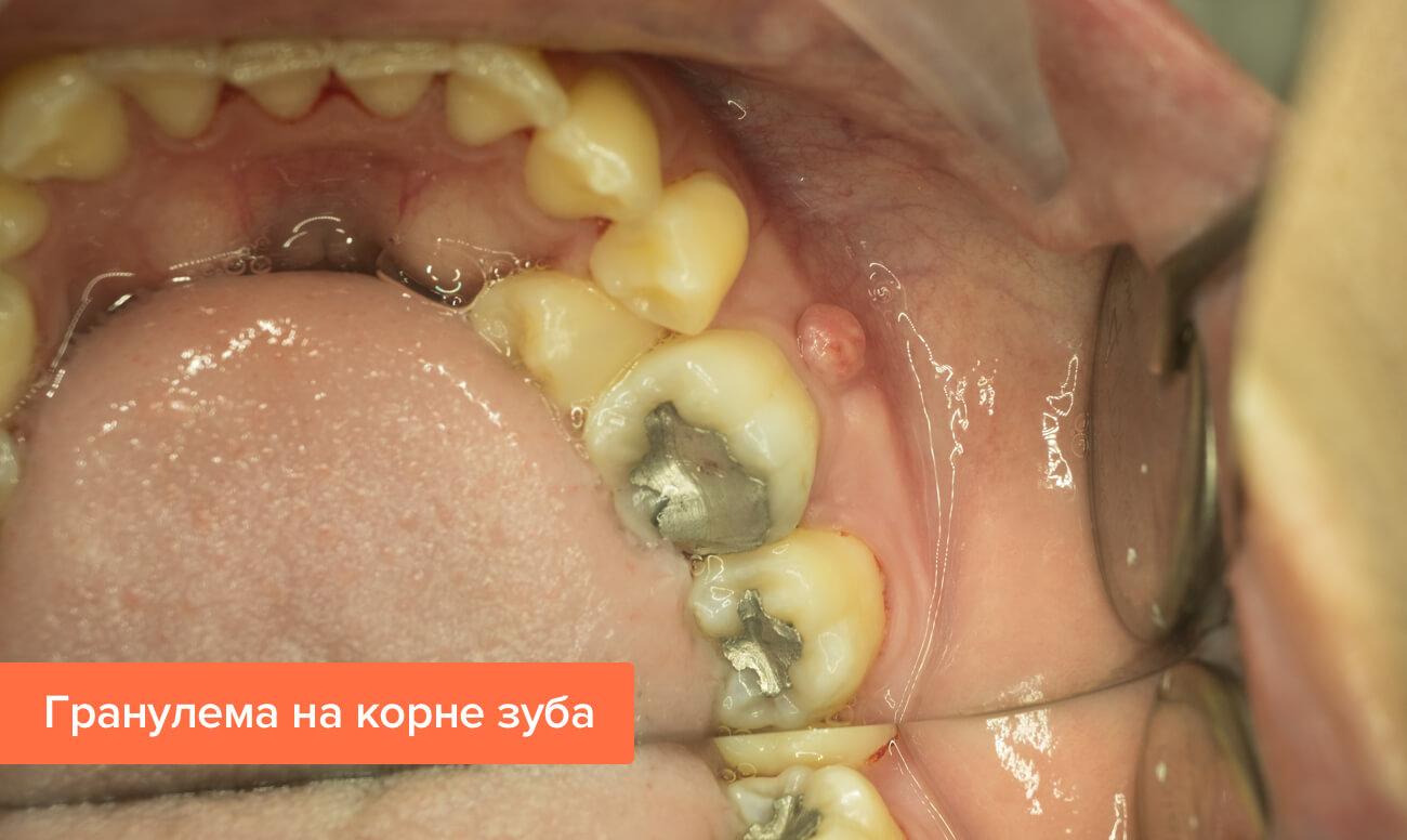 Гранулема зуба : лечение в клинике и народными средствами 70
