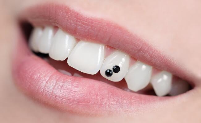 Фото декоративных накладок на зубы