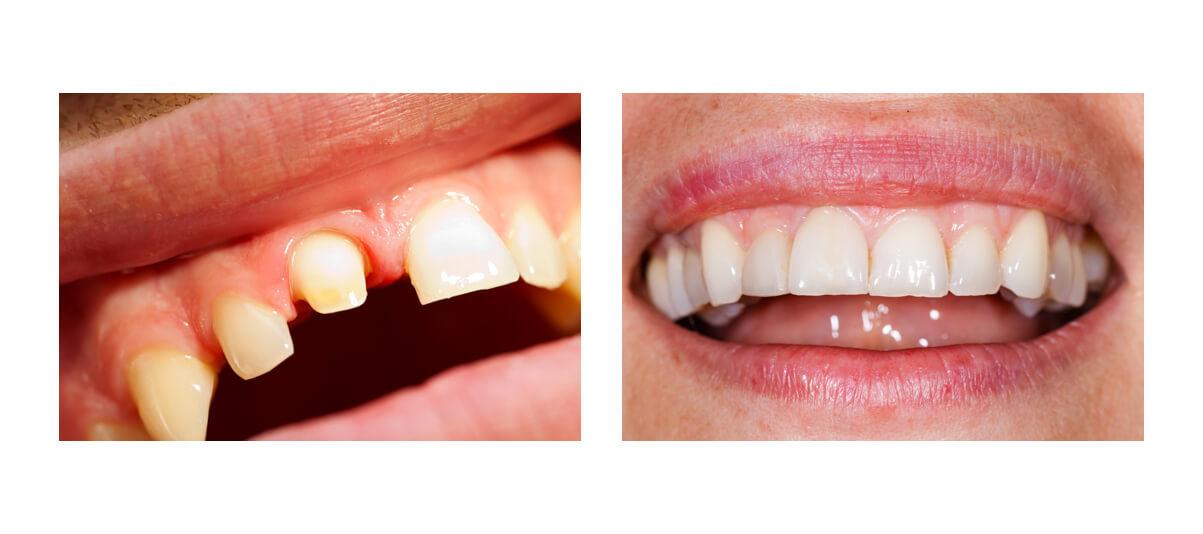 Фото пациента до и после протезирования с обточкой зубов