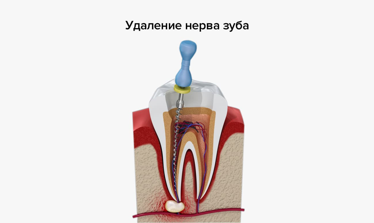 Почему болит зуб после пломбирования при надавливании