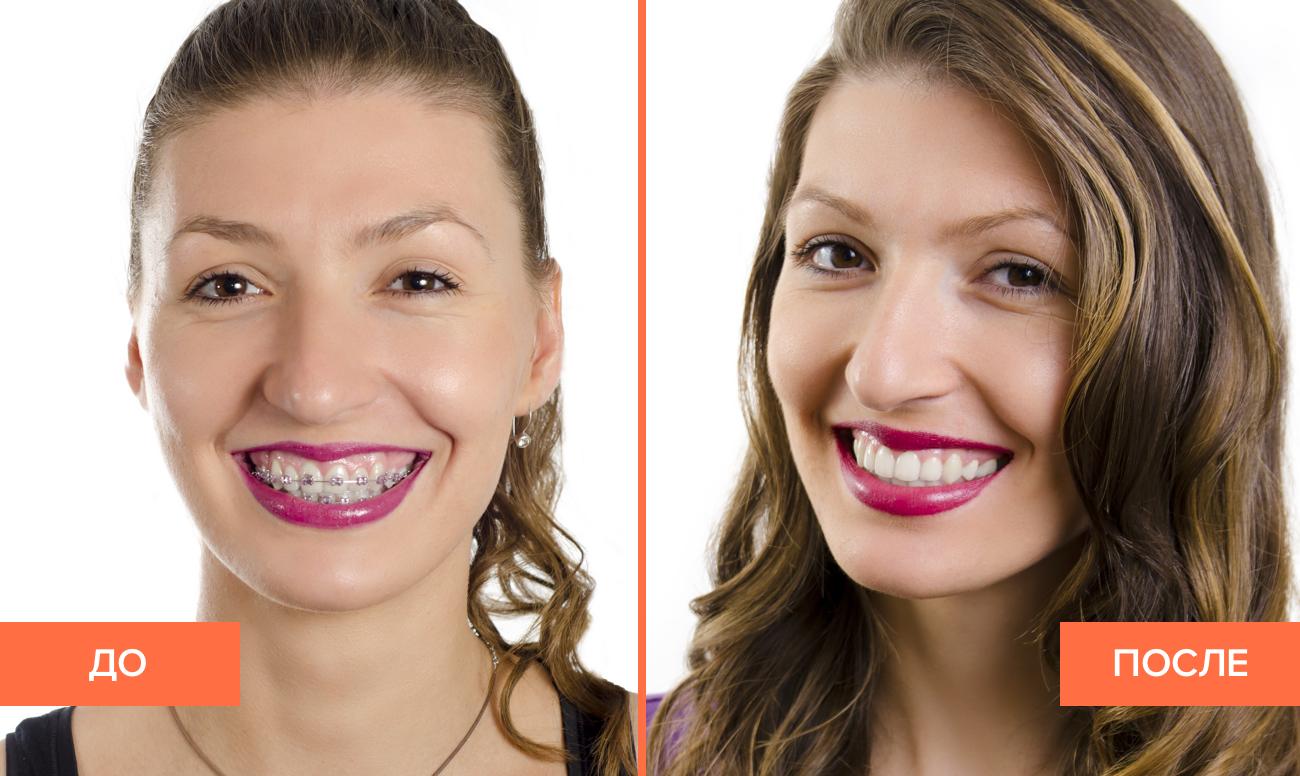 Фото пациента до и после снятия брекетов с зубов