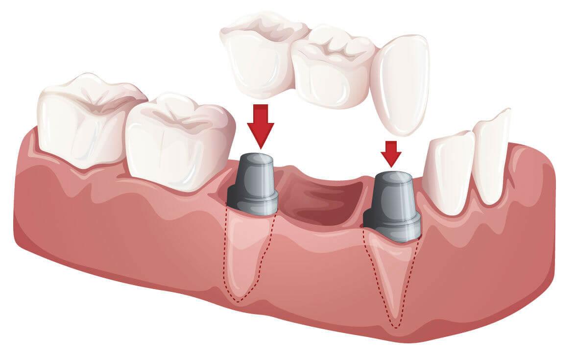 люди об имплантации зубов